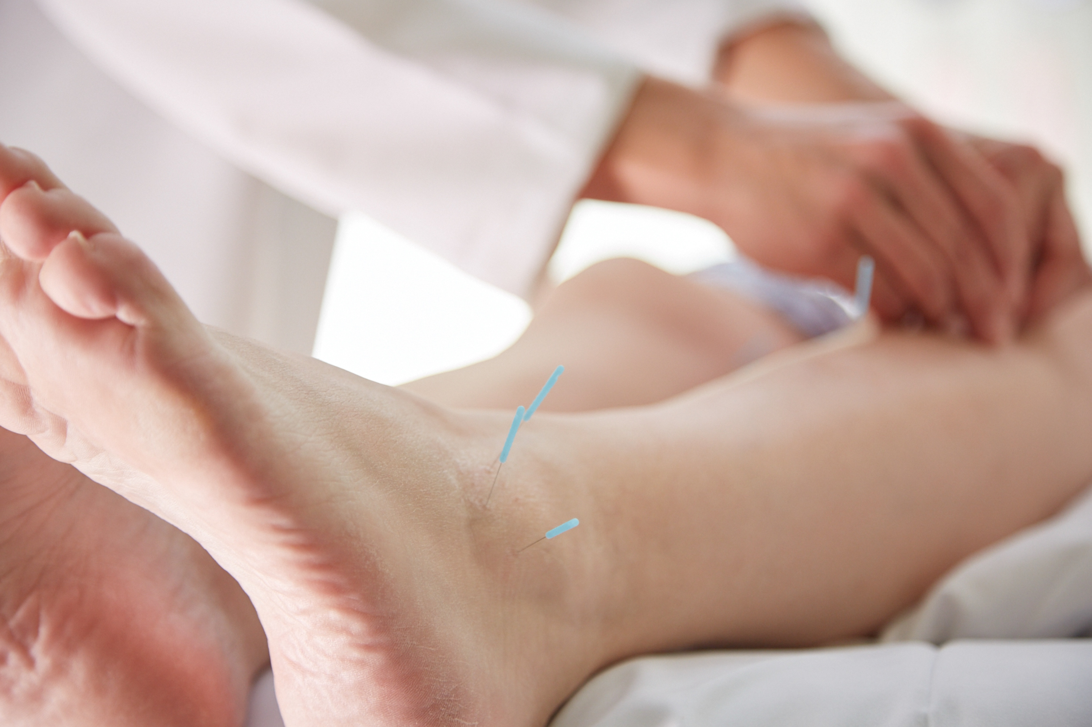 Susan Kim Performs Acupuncture to Treat Many Illnesses.jpg